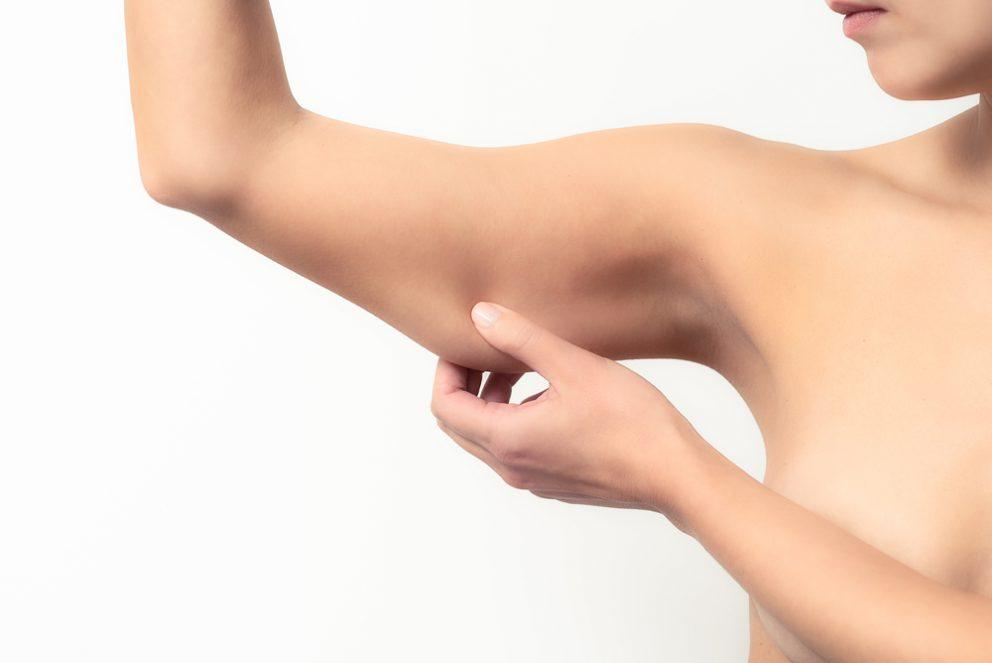 Voir Lifting des bras ou brachioplastie