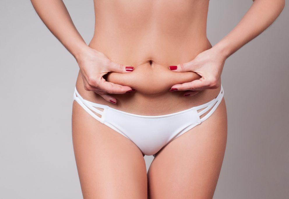 Voir Plastie abdominale ou abdominoplastie