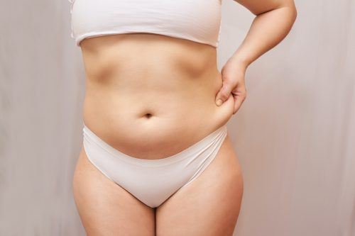 Voir Liposuccion du ventre ou abdominoplastie ?
