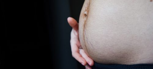 Voir Diastasis & abdominoplastie : chirurgie réparatrice ventre
