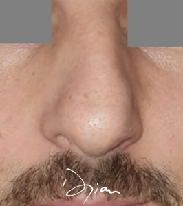 rhinoplastie pointe nez