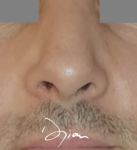 rhinoplastie pointe du nez